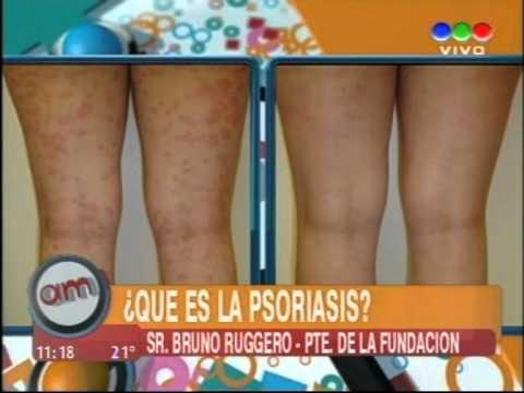 Medicina da eczema di dermatite e psoriasi