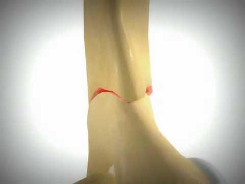 Kość kciuka stóp