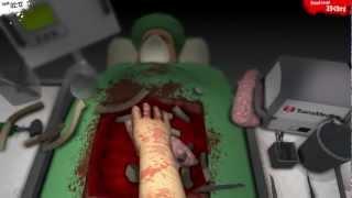 Tutoriaali: Sydämensiirto