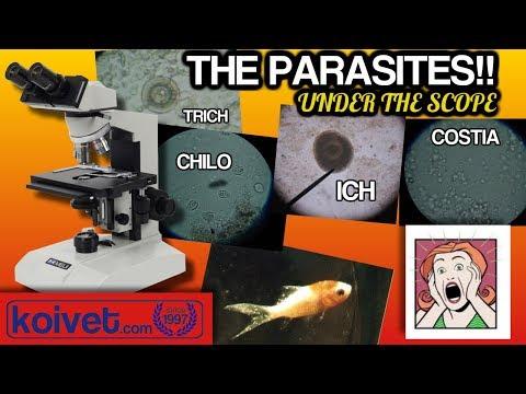 Kung saan ang mga parasites sa isang bata