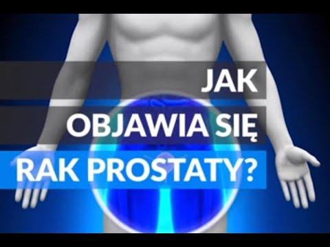Masaż prostaty mąż torrent download