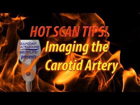 Hot Tip - Imaging The Carotid Artery
