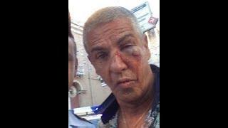 Подробности о состоянии избитого в Москве известного актера