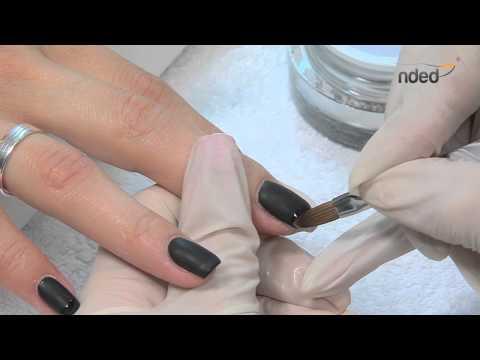 Otslojenije der Nägel auf den Händen bei den Kindern die Behandlung