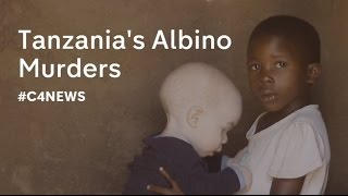 Did you know that in parts of Africa people with Albinism are