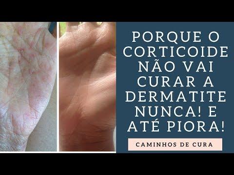 Eczema de unguento de salicylic