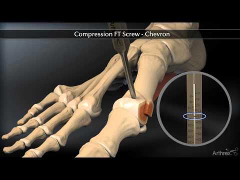 Koślawego deformacja palca