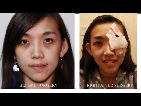 Ano ang laser resurfacing ng lens sa mata
