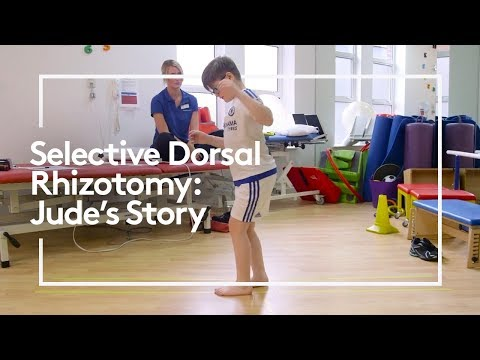 Screenshot of video: Selective Dorsal Rhizotomy