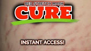 How to Treat Red Stretch Marks! (Red Stretch Marks Cure)...