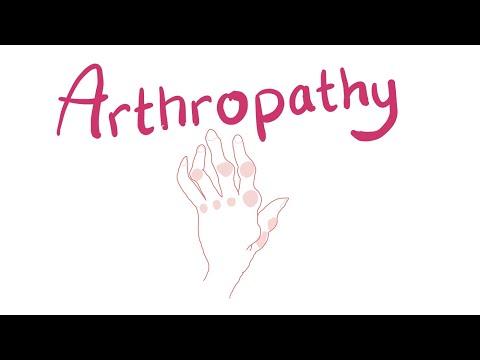 Hogyan kezeljük a térd artrózisát 2 fokkal