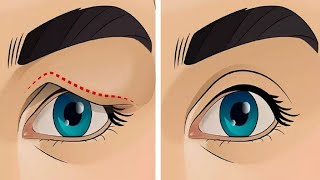 How To Treat Droopy Eyelids Naturally ( Amazing Result......100% Works)