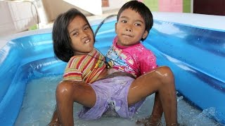 Together Forever: Conjoined Twins Don't Want To Be Separated