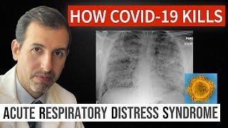 How Coronavirus Kills: Acute Respiratory Distress Syndrome (ARDS) & Treatment