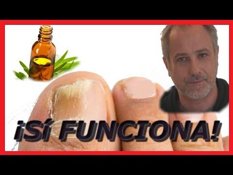 Los medios medicamentosos del tratamiento de las uñas