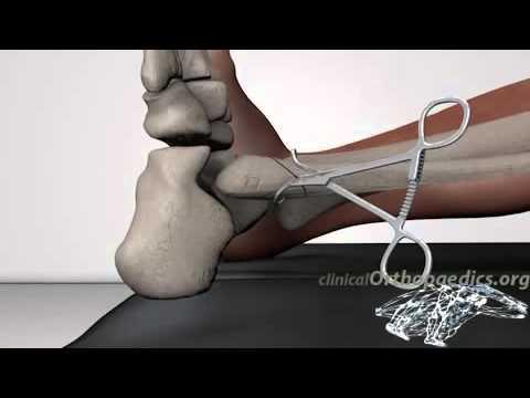 Behandlung von Hüftoperationen Patienten ohne Bewertungen