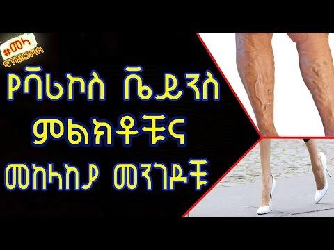 Varicosity di sintomi di gambe e trattamento