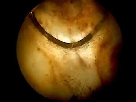 Was sind die Stadien von Prostatakrebs
