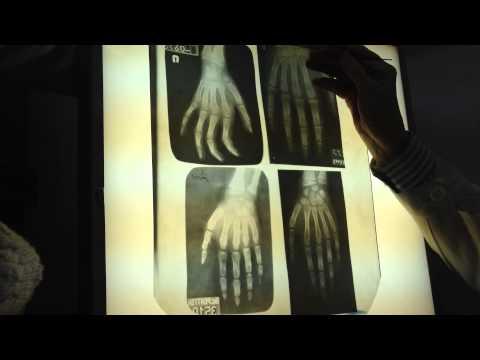 Компрессы на тазобедренный сустав при артрозе и остеопорозе