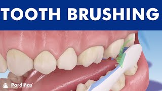 Tooth Brushing – How To Brush Your Teeth ©