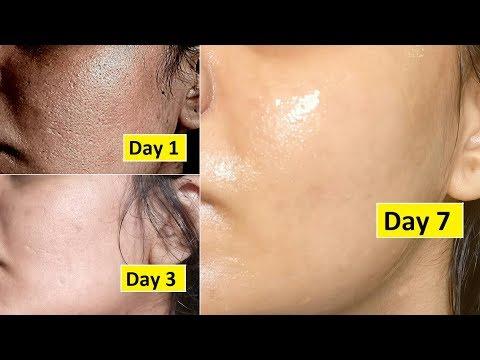 Super facial mask ng wrinkles