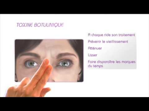 Lissage des rides par Botox