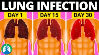 Top 10 Natural Lung Infection Treatments (Home Remedies)