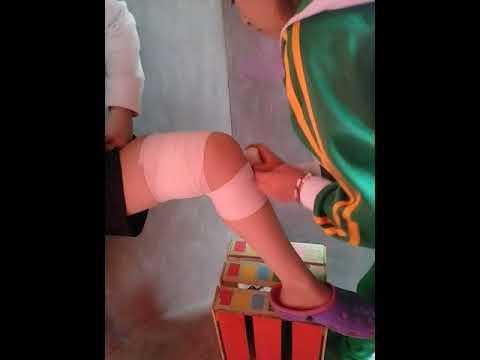 Gonartrosis de rodilla conjunta 1 medida en que es