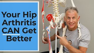 You Are Wrong! Your Hip Arthritis Pain Can Get Better!