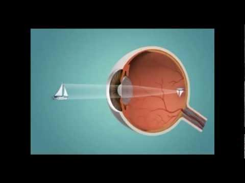 Áfonya segít helyreállítani a látást