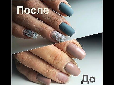Rubromikos der Nägel der Füsse die Behandlung