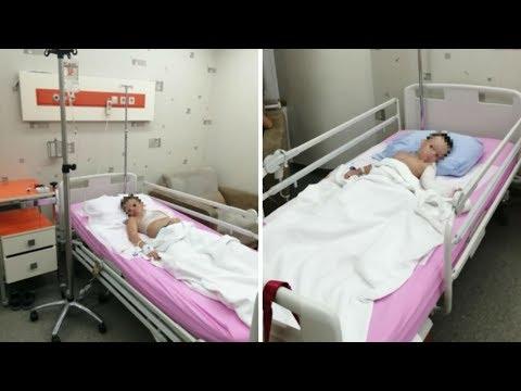 Уральских детей в Турции обварили маслом