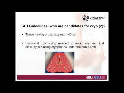 Wie kann Ultraschall der Prostata rektal ein Video von Männern haben