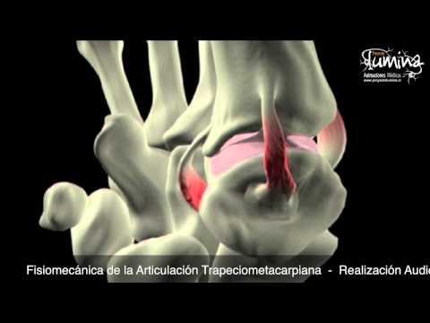 Síntomas de las articulaciones artrosis de borde laterales