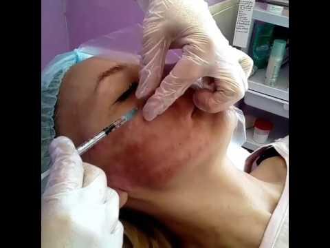 Купить кружевную маску на глаза спб