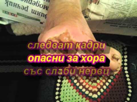 Краката му бяха покрити с петна при диабет