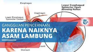 GERD atau Gastroesophageal reflux disease, Gangguan Pencernaan karena Naiknya Asam Lambung