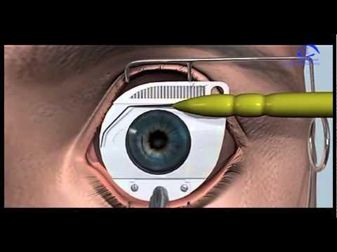 Восстановление улучшения зрения народные средства