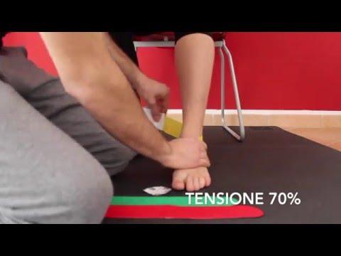 Artrite gelatina trattata ginocchio