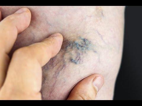 Cerotto di pepe a thrombophlebitis