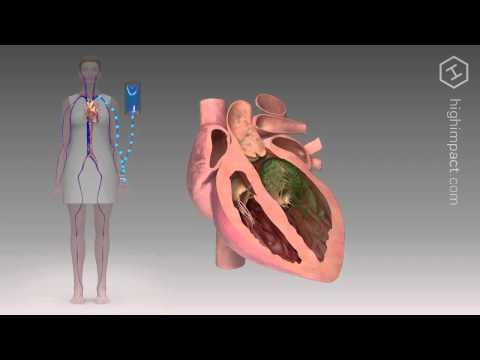 Bei Blutdruckabfall