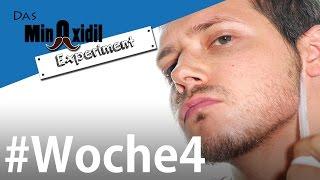 Bart nachher minoxidil vorher documents.openideo.com