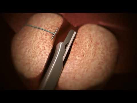 Per il cancro della prostata dopo la biopsia