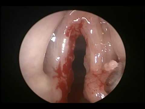 Esophagus papilloma pathology