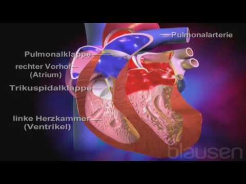 Cardiology | Privatklinik Bethanien