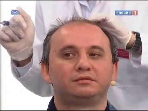 Почему мужчины лысеют? Как предотвратить выпадение волос?