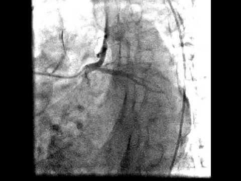 Visszér kezelése szkleroterápia vélemények