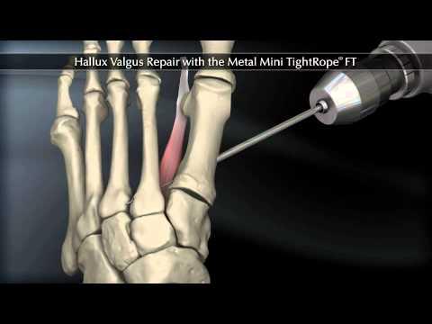 เท้า valgus ศัลยกรรมกระดูกและข้อแก้