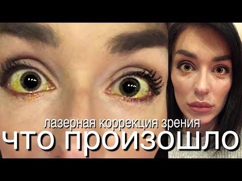 Стоимость операции по восстановлению зрения иркутск