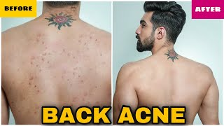 HOW TO REMOVE BACK ACNE FAST|MEN & WOMEN|NATURAL|PIMPLES|BACK ACNE TREATMENT|DARK SPOTS| HINDI